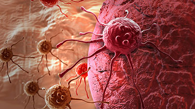 The Biology of Human Cancer
