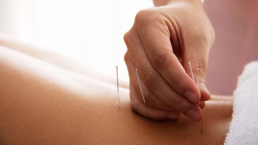 Myths about Acupuncture's Past and Benefits